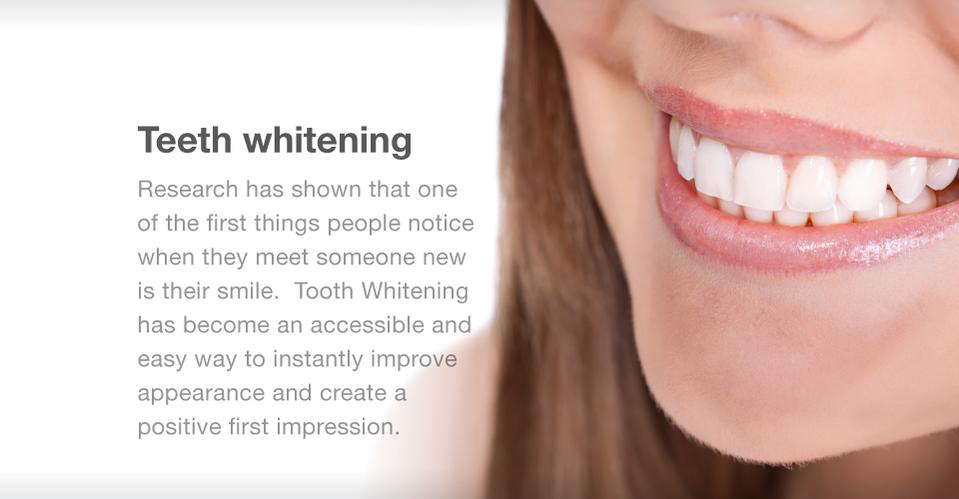Teeth Whitening | Instantly improve appearance and create a positive first impression